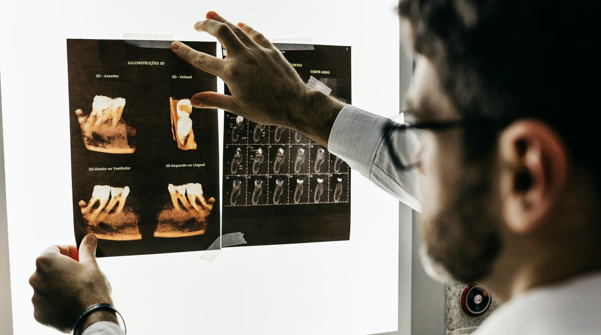 ai to read radiology results